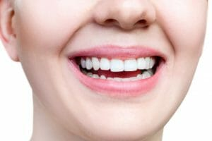 Woman smiling after receiving periodontal therapy treatment