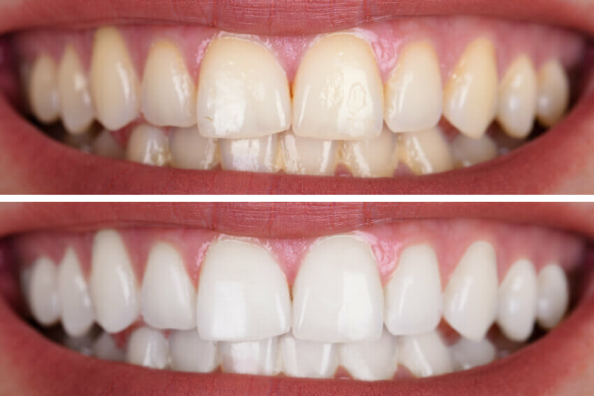 Teeth whitening comparison of tow mouths side by side