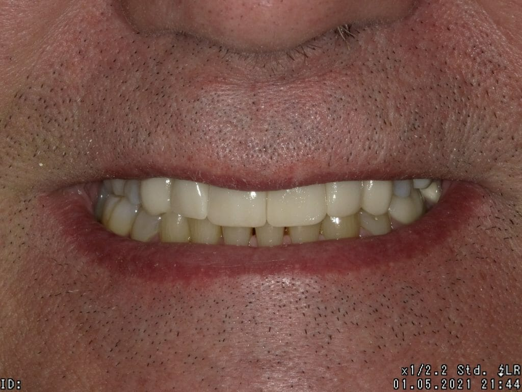 Close up of straighter teeth